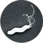 乳酸菌は「胃がん」の最大原因であるピロリ菌除去にも効果アリ!?