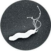 ピロリ菌は、胃の中に好んで住みつき、胃の壁を傷つける約3-5ミクロンの長さの細菌です