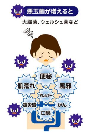 悪玉菌は、腸内をアルカリ性にし、腸内を腐敗させたり毒素のある有害物質を作り出します