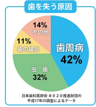 日本人が歯を失うもっとも大きな原因が歯周病