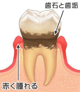 プラークの量が多く繁殖が続くと序々に歯周組織は破壊されていきます