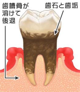 歯周病は口内細菌と免疫の戦いです