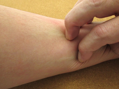 バリア機能が低下すると免疫反応によりかゆみや湿疹などの症状が出る