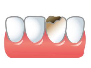 歯周病は、食べかすや歯垢にすみつく歯周病菌が主な原因