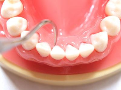 歯みがきでみがき残した歯垢は、唾液中のカルシウムやリンと結びついて石灰化し、歯石へと変わってしまいます