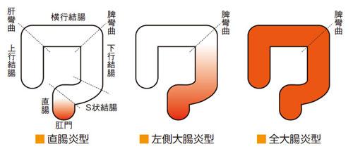 潰瘍性大腸炎は(1)直腸炎型(2)左側大腸炎型(3)全大腸炎型と3つに分類されます