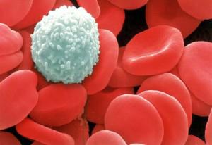免疫力が正常に働いていれば病気を未然に防ぐことができます
