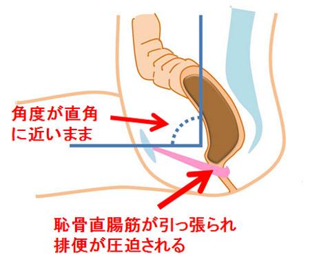 恥骨直腸筋が引っ張られ排便が圧迫される