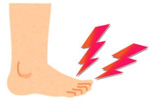 痛風になると手足の指のつけ根が痛くなることが多い