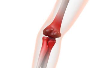 尿酸の濃度が高い状態が続くと尿酸の結晶が関節の内面に沈着します