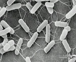 病原性大腸菌O-157の画像
