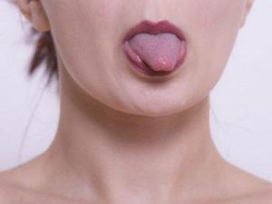 あいうべ体操は、舌と口を意識的に動かすことで口呼吸を鼻呼吸へと改善するトレーニング法