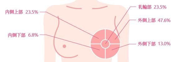 乳房のしこりのできやすいは5か所です