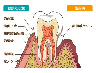 口内細菌が歯と歯茎の隙間から血管に入ると大変