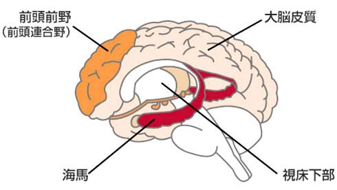 海馬が損傷・委縮していくことにより認知症が発生します