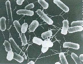 腸管出血性大腸菌とは体内に入ると腸管に出血をもたらす大腸菌の一種です