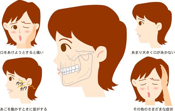 顎関節症の症状「あごが痛い」「あごがカクカク鳴る」「口が開きにくい」