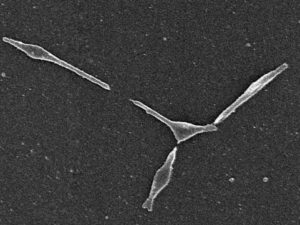 肺炎マイコプラズの電子顕微鏡写真