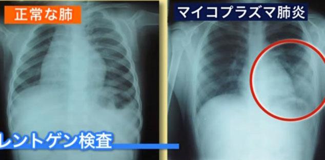マイコプラズマ肺炎は病院で診察しても呼吸音に異常がなく、外見だけではわかりにくい肺炎