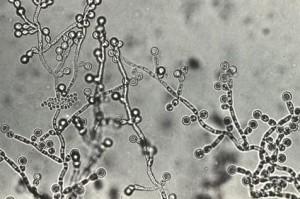 カンジダ菌の繁殖はリーキーガット症候群の原因となります