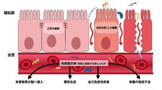 リーキーガット症候群=腸管浸漏症候群イメージ