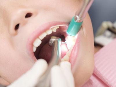 実質的に自己負担0円で歯科検診や治療を受けられます