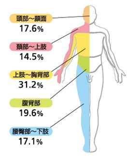 帯状疱疹が発症する体の部位