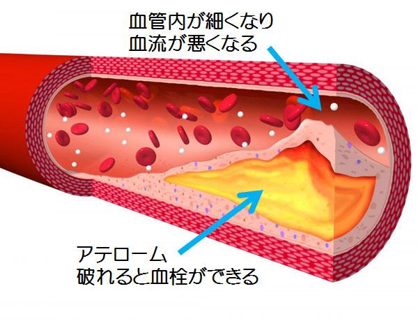 動脈内にできたアテローム