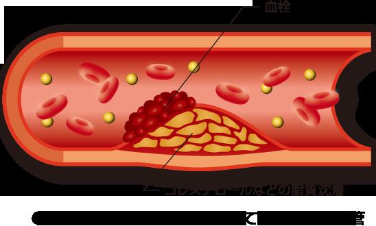 動脈硬化といえば、LDLコレステロールが動脈内に溜まり血管内が細くなる