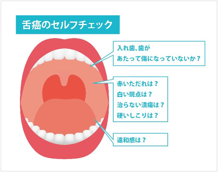舌がん早期発見チェツク