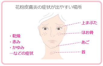 花粉皮膚炎の症状が現れる体の部位