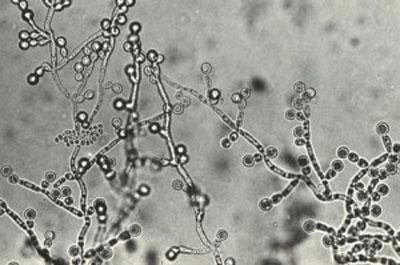 カンジダ菌はカビの一種